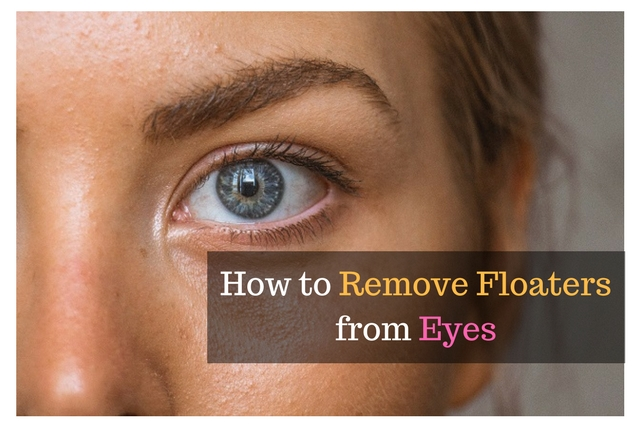 How to Remove Floaters fromEyes